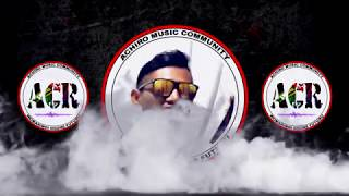 Biapong Ping Pong (OFFICIAL VIDEO) ACR ARKI [DJ DEON] MP3