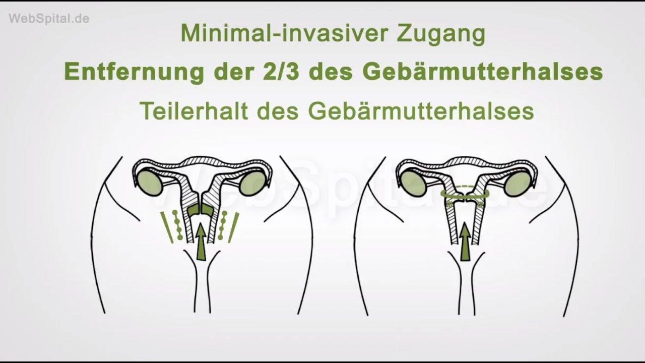 Großzügig Gebärmutter Und Des Gebärmutterhalses Ideen - Menschliche ...