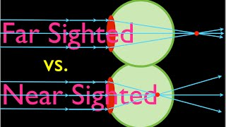 Farsighteness vs. Nearsightedness, An Explanation