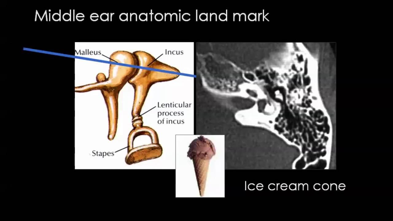 Imaging Of Petrous Bone Part 1 Anatomy Dr Mamdouh Mahfouz Youtube