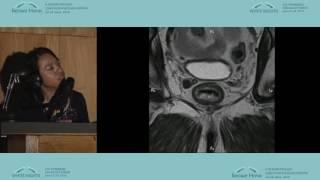 Современные возможности МРТ в предоперационном стадировании больных раком прямой кишки 2(, 2016-08-19T10:20:37.000Z)