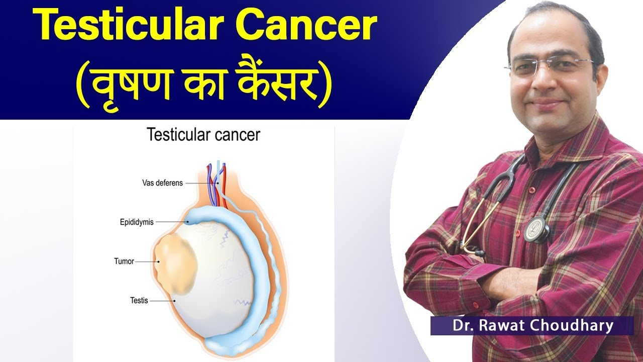 À¤… À¤¡à¤• À¤· À¤• À¤• À¤¸à¤° Treatment Of Testicular Cancer Best Homeopathic Treatment Of Cancer Youtube
