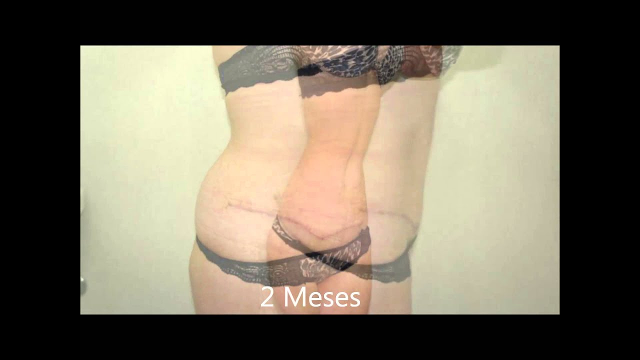 4 Meses De Abdominoplastia Youtube