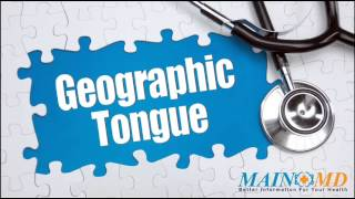 Geographic Tongue ¦ Treatment and Symptoms