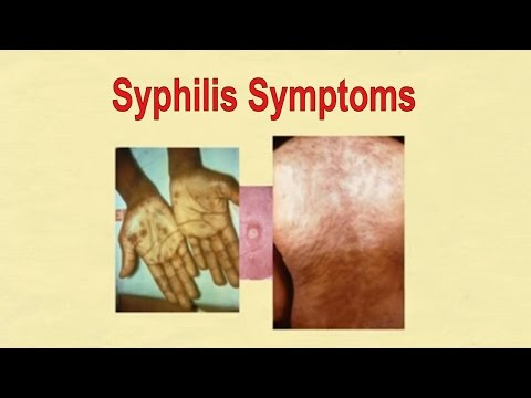 Syphilis Symptoms | Symptoms of Syphilis STD