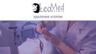 Удаление атером(http://www.leomed.com.ua/ тел. (044) 238-89-93 Сегодня речь пойдет об атеромах. Атерома – доброкачественная опухоль, которая..., 2015-03-02T16:06:23.000Z)