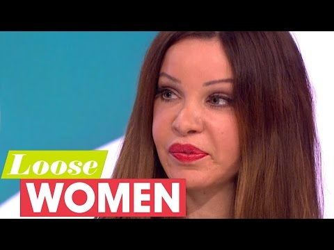 Alicia Douvall's Bum Implants Could Kill Her  Loose Women
