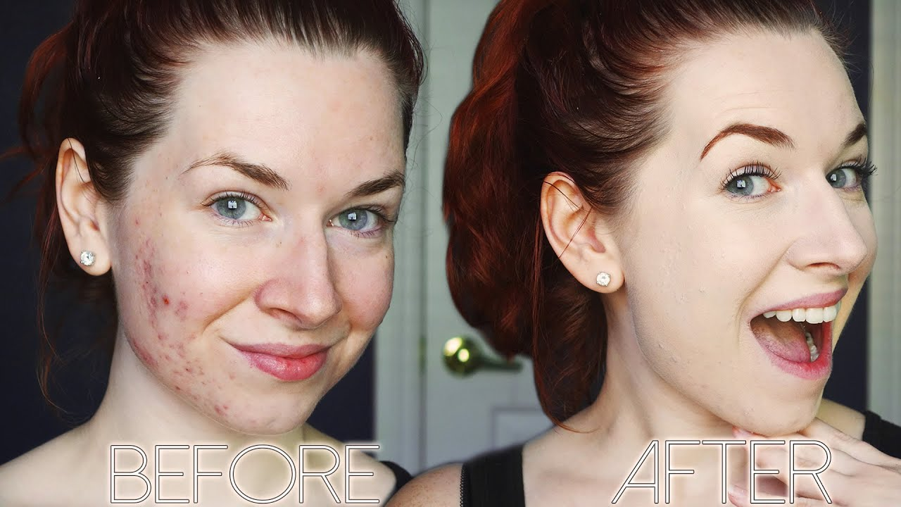 Acne Coverage Foundation Routine ♡ Full Face Full