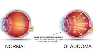 Dicas do Doutor - Glaucoma. A Doença Silenciosa