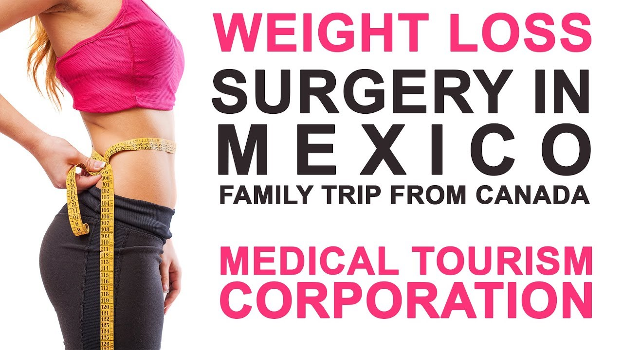 Weight Loss Surgery in Mexico - Medical Tourism Corporation