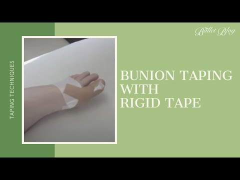 Bunionette Taping