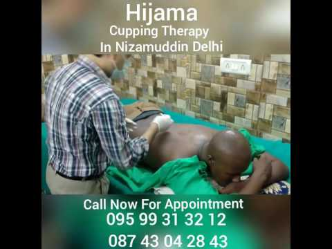 Hijama Cupping Therapy New Delhi, Our patient from Africa, Call For Appointment  +91-8743042843