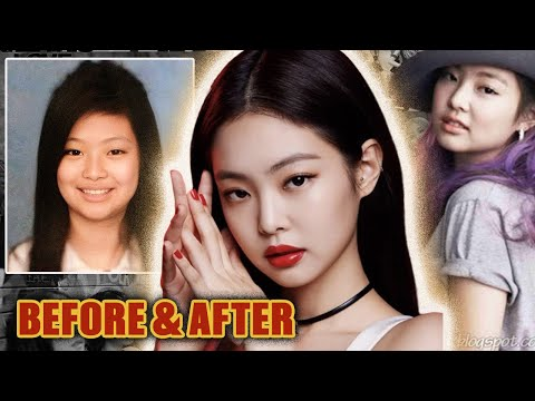 BlackPink Jennie Kim: Plastic Surgery (2016-2020) - Lifting The Veil
