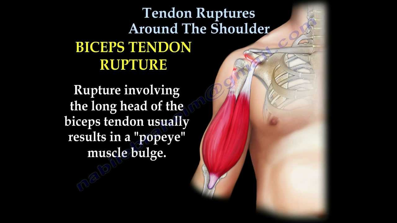 Tendon Ruptures Around The Shoulder Everything You Need To Know
