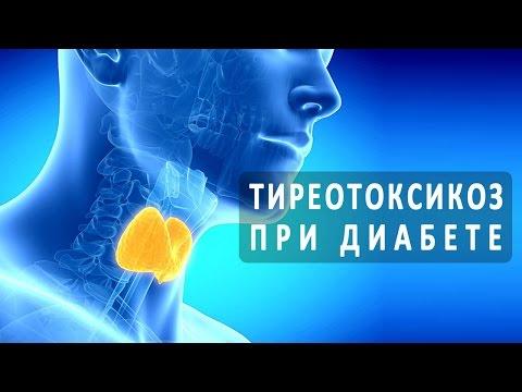 Тиреотоксикоз: симптомы и лечение, причины возникновения