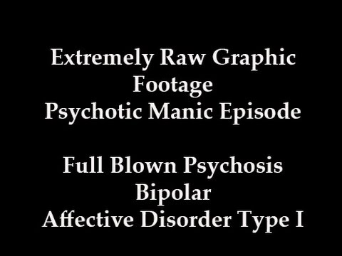 hqdefault - Manic Depression Psychotic Episode