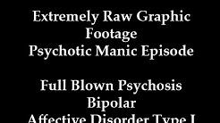 hqdefault - Manic Depression Psychotic Episode