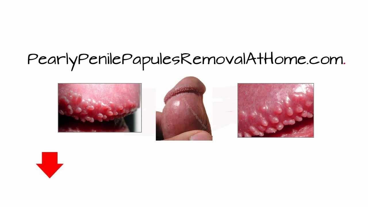 penis treatment video