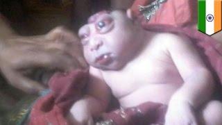 한 인도 여성, 기형아 낳자마자, 외계인이냐며 몇시간 동안 아기얼굴 안봐