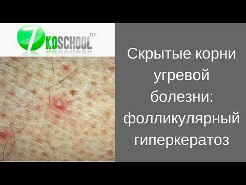 Скрытые корни угревой болезни: фолликулярный гиперкератоз.