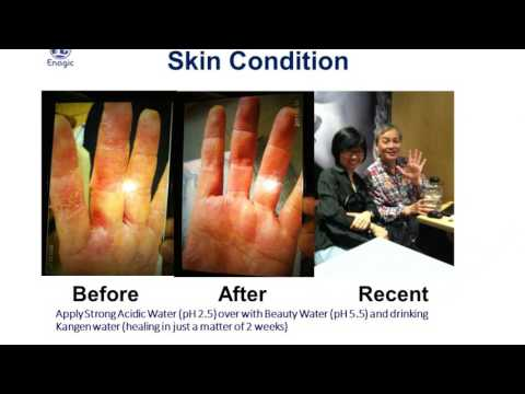 Kangen Water & Eczema, Psoriasis Causes & Symptoms - Youtube