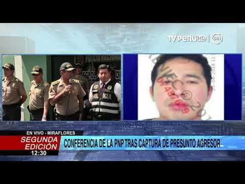 Carlos Hualpa entró en contradicciones al explicar quemaduras en mano y antebrazo