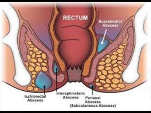 Irritable Bowel Syndrome Home Remedy India