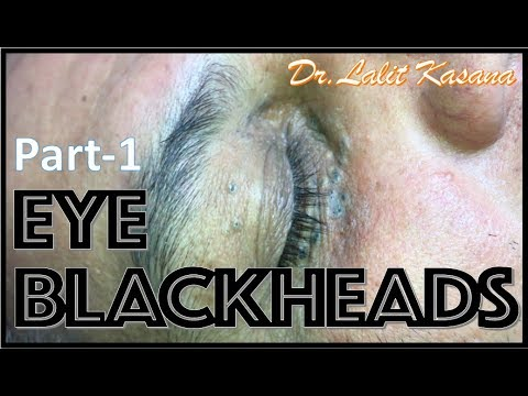 OLD EYE BLACKHEADS PART-1 By Dr Lalit Kasana
