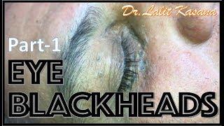 OLD EYE BLACKHEADS PART-1 By Dr.Lalit Kasana
