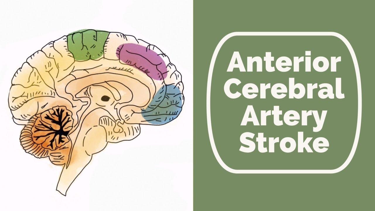 Anterior Cerebral Artery Stroke - YouTube