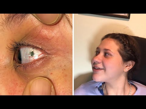 Doctor Implants Jewellery Into Patients Eyeball