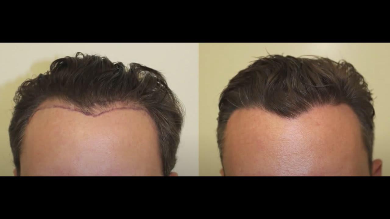 Haartransplantation Geheimratsecken - Dr. Heitmann Zürich
