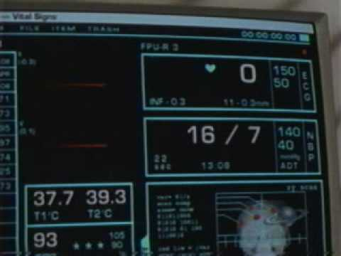 Outer Limits   D   man coding on surgery table