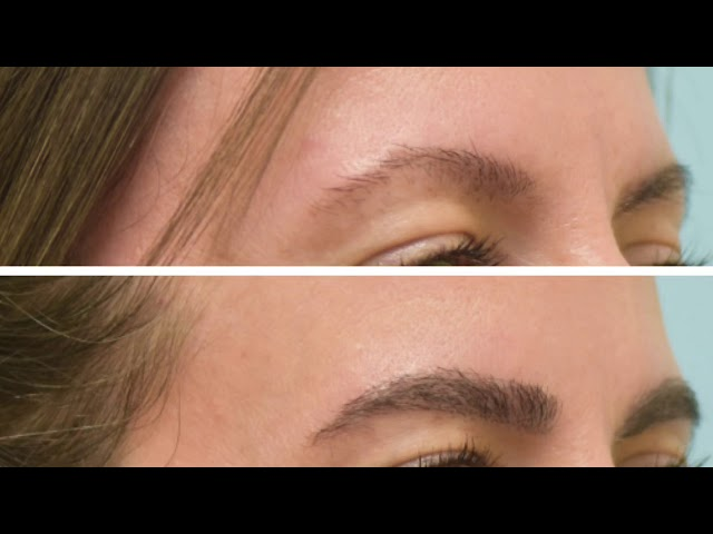 Dallas Eyebrow Transplant HD Closeup Video