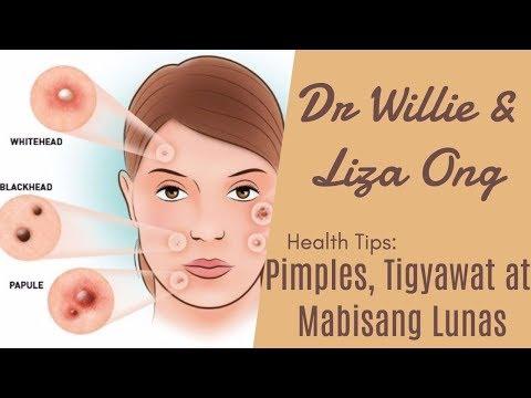 Pimples, Tigyawat at Mabisang Lunas – by Doc Katty Go (Dermatologist) #33