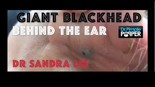 Giant Blackhead, Dilated Pore of Winer, behind the ear extracted thumbnail