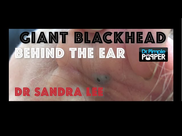 Giant Blackhead, Dilated Pore of Winer, behind the ear ...