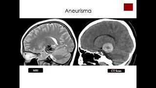 Otak aneurisma angiografi.