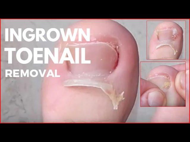 VIDEO: People removing their ingrown toenails - INSIDER