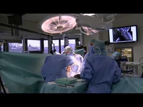 French Door Laminoplasty For Cervical Spondylotic