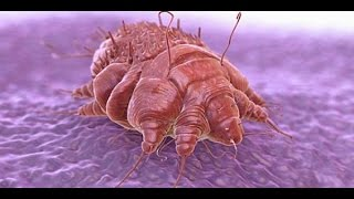 ☢☢Where Do Scabies Come From, How To Kill Scabies Mites On Bedding, Get Rid Of Scabies*