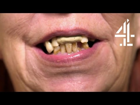 Woman With No Teeth Hides It with Chewing Gum | Never Seen A Doctor