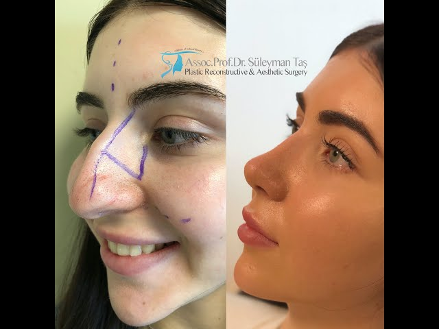 The best nose job with before and after