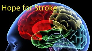 Hope for People Who Have Experienced a Stroke