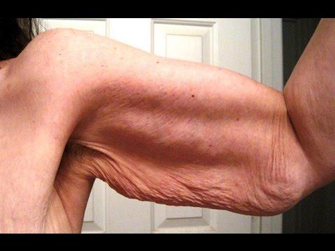 Bamitol para adelgazar brazos
