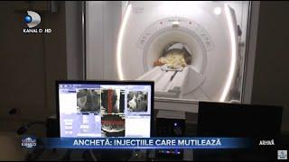 Stirile Kanal D (26.04.2021) - ANCHETA: Injectiile care mutileaza! | Editie de seara