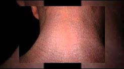 UNBELIEVABLE RESULTS - ProEcza Eczema Cream Vs ProTopic Eczema Cream