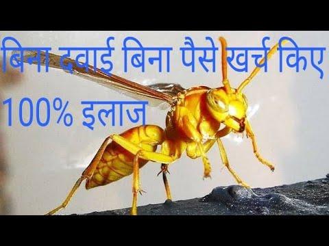 Download ततैया मधुमक्खी के काटने पर क्या करें दर्द और डंक का 100% इलाज   Remedy for wasp and bee sting