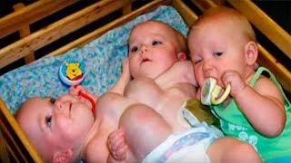 Родители отказались от детей, когда узнали, что они сиамские близнецы. Жизнь детей спустя 16 лет