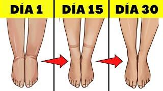 De líquidos en piernas cura las retención